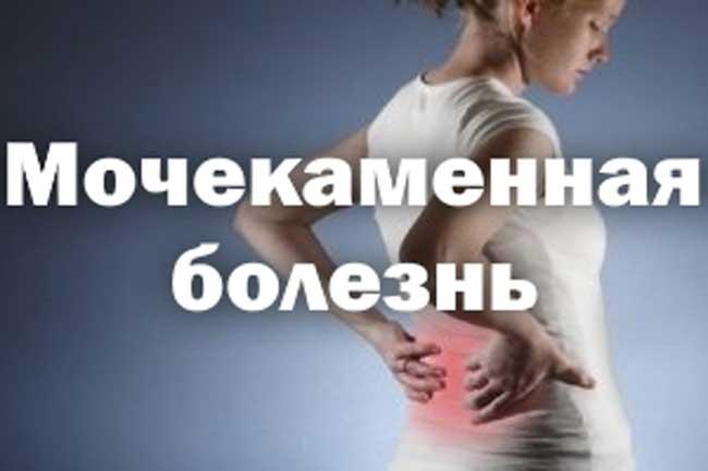 Мочекаменная болезн у женщин