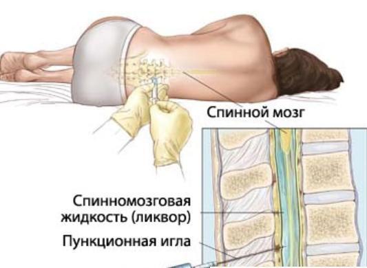 9 видов травм и болезней спинного мозга лечение и диагностика