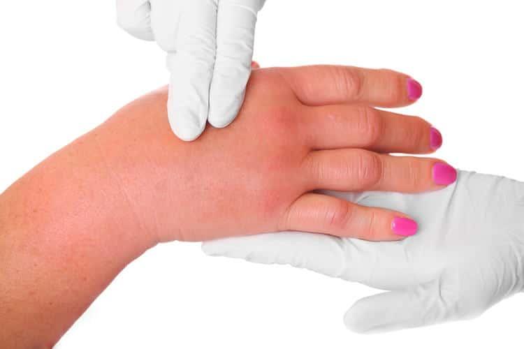 Опухают суставы пальцев рук: причины, как и чем лечить?