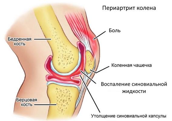 Периартрит бедренных сухожилий 10 причин развития, лечение и диагностика