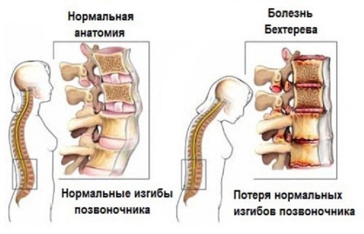 Как избавиться от соли в спине 4 метода лечения и признаки недуга