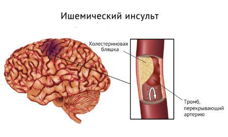 Несколько причин резкого повышения артериального давления, методы лечения, профилактика, последствия и симптомы