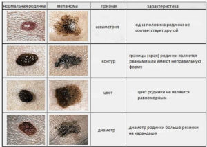 Таблица отличий родинок от меланомы