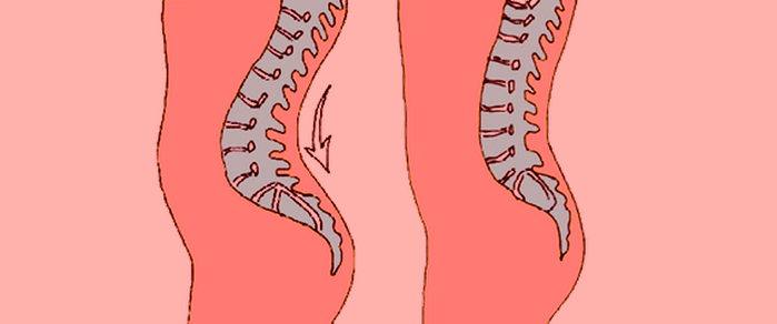 Гиперлордоз поясничного отдела 4 симптома и лечение
