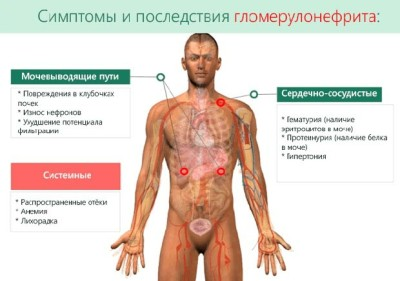 Симптомы гломерулонефрита у взрослых