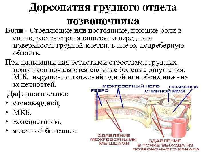 Дорсопатия грудного отдела факторы развития и лечение