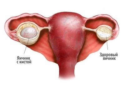 Причины разрыва кисты яичника