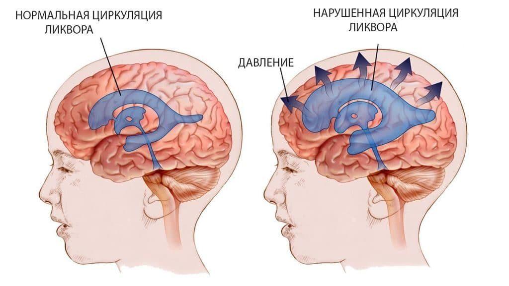 Признаки внутричерепной гипертензии