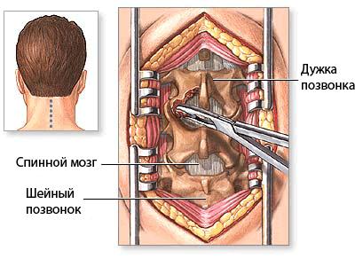 Паралич и 4 осложнения стеноза позвоночного канала. Как не оказаться прикованным к постели?