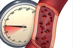 Престариум назначают при артериальной гипертензии.
