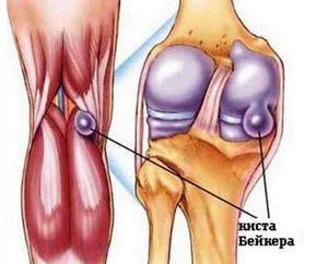 Рентгенотерапия на коленный сустав