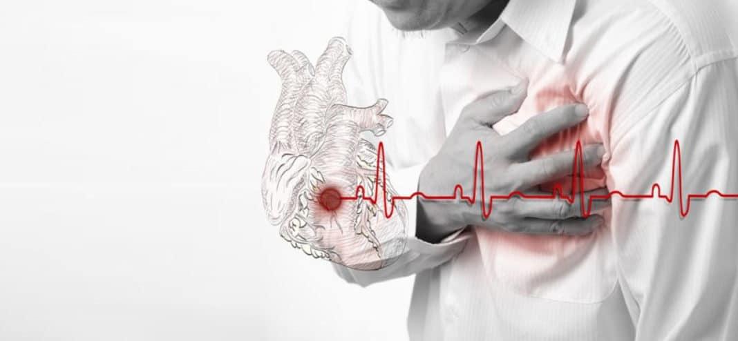 Инсульт и инфаркт в чем разница
