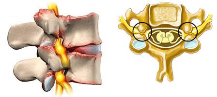 5 признаков миелопатии что за болезнь и почему трудно поддаётся лечению?