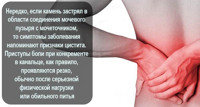 Симптомы камня в мочеточнике