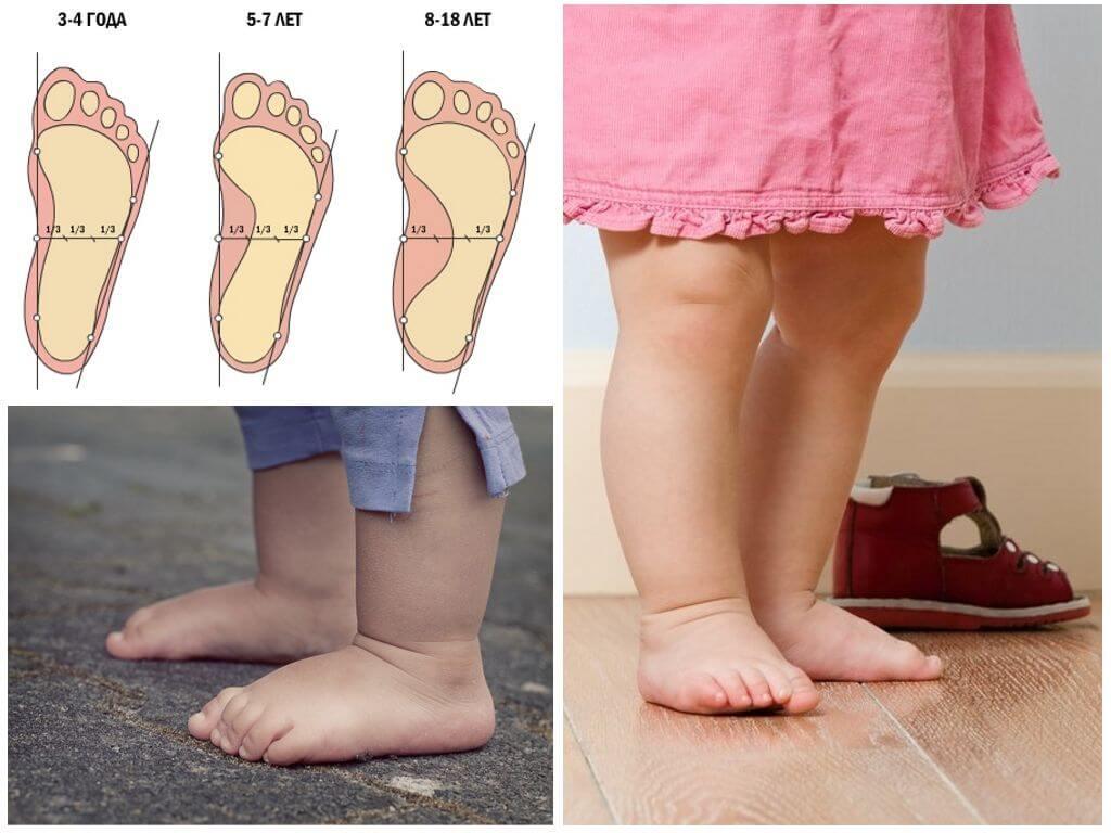Разрешённые упражнения при плоскостопии у детей 3 требования к гимнастике
