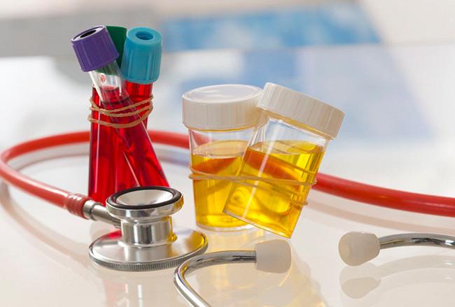 Изменение в анализах крови и мочи
