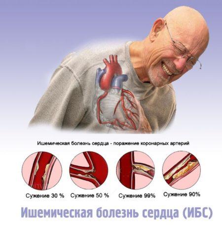 Инструкция по применению таблеток «Биола», показания и противопоказания, состав лекарственного средства