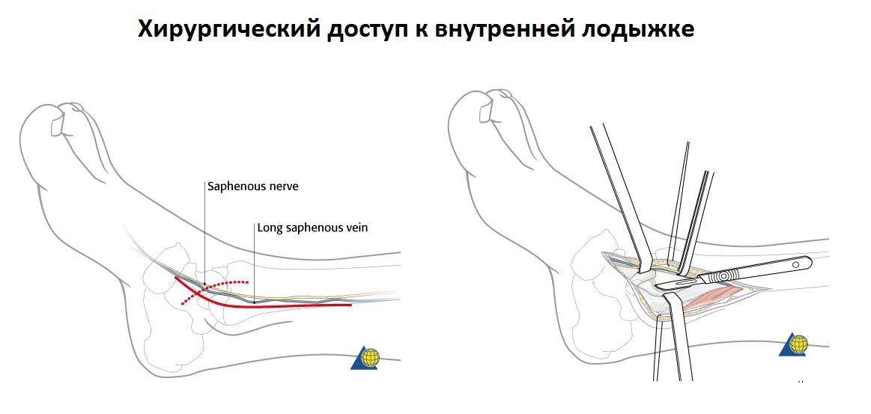 Внутренний и наружный перелом лодыжки 6 правил первой помощи