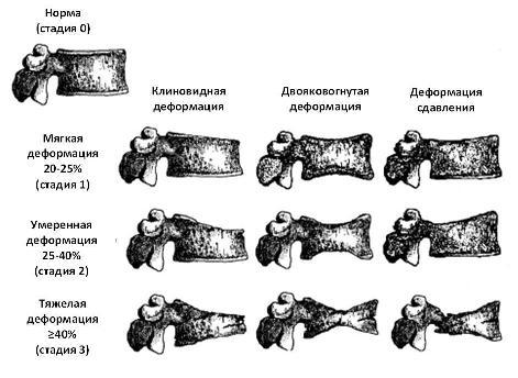 5 причин клиновидная деформации тел позвонков Th7, Th12