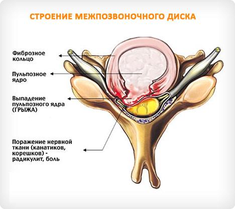 Грыжа поясничного отдела позвоночника 11 методов лечения