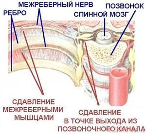 Что означает боль под правой лопаткой сзади со спины?