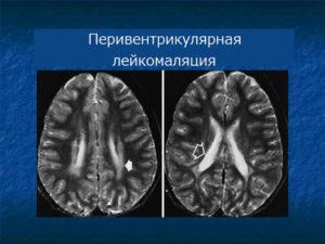 Фото развития опухоли