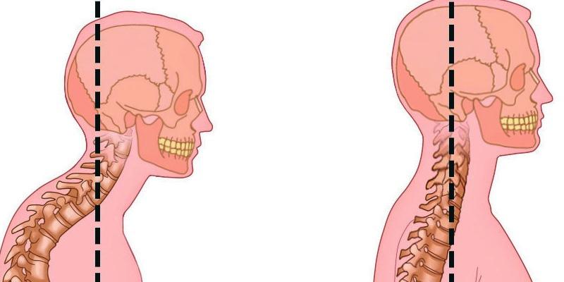 Шейный гиперлордоз 6 причин и лечение
