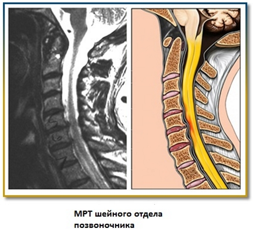 Остеохондроз 2 степени симптомы и лечение