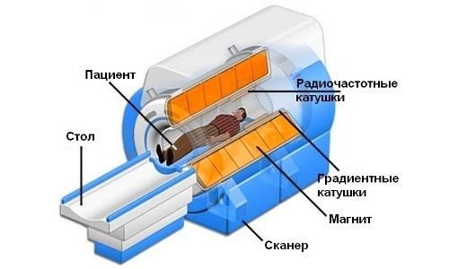 Магнитно резонансная томография позвоночника, как подготовиться?