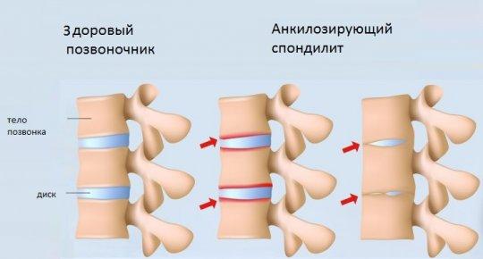 Что такое спондилодисцит позвоночника 4 осложнения, которые могут привести к инвалидности