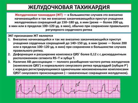 Причины и лечение учащенного сердцебиения при пониженном давлении