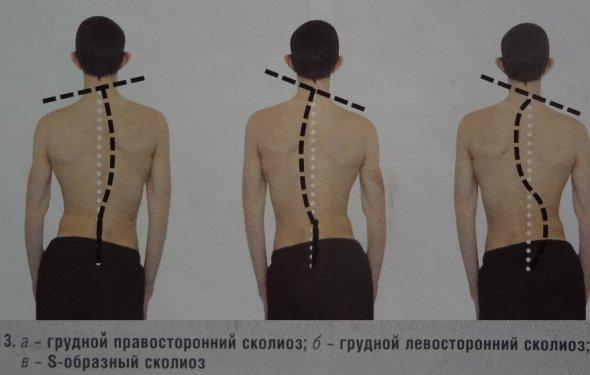 Причины сколиоза с левой стороны: лечение, упражнения, лфк