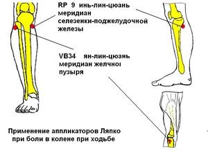 Причины заболевания коленого сустава
