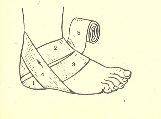 Повязка на голеностопный сустав 4 вида и правила наложения