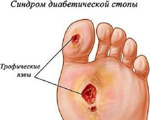 Диабетическая язва на ноге