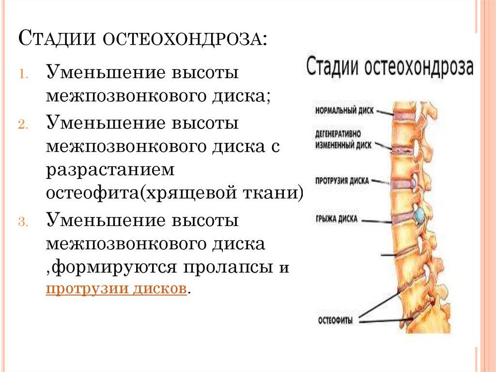 5 препаратов от болей в конечностях при остеохондрозе. Причины недуга