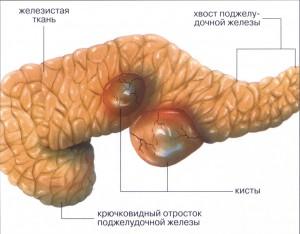 Кисты поджелудочной железы