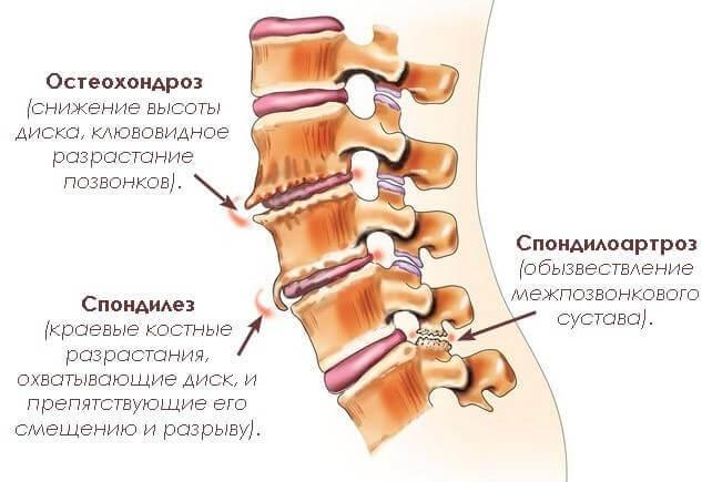 21 заболевание связанное с болью в спине в области поясницы. Проверьте что у Вас?