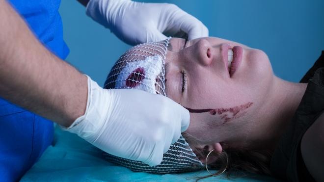 Препарат часто назначают при черепно-мозговых травмах.