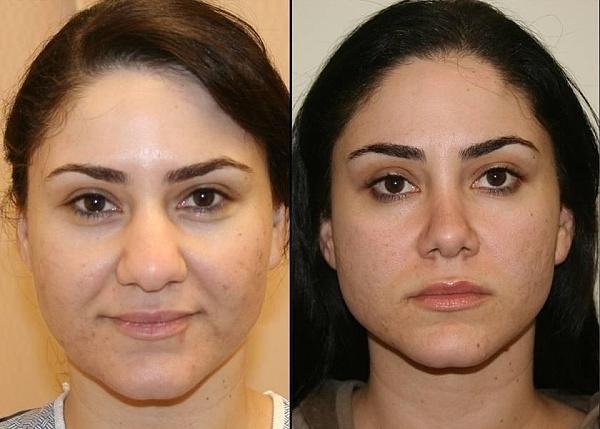 Результат до и после операции