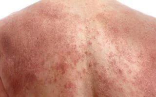 виды аллергии у детей на коже фото