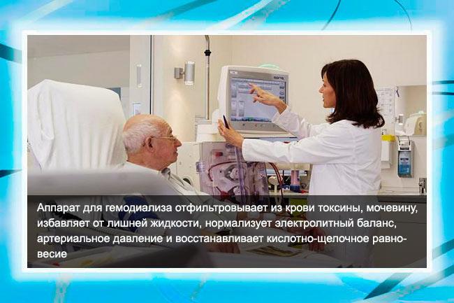 Процедура гемодиализа