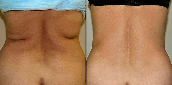 Фото до и после липосакции на талии