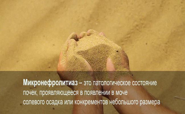 Песок в почках