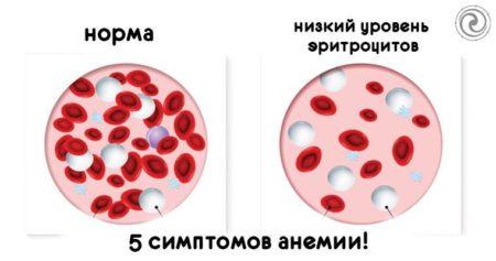 Отклонения от нормы уровня гемоглобина и лейкоцитов при раке, как скорректировать значения