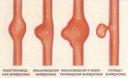 Чем опасны высокие показатели артериального давления, симптомы, причины развития гипертонии, методы лечения и профилактики