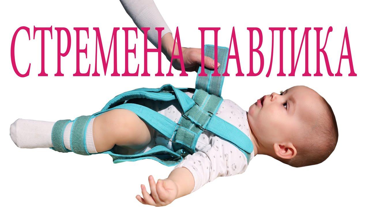 Дисплазия тазобедренных суставов и детей до года, как лечить, к кому обратиться?