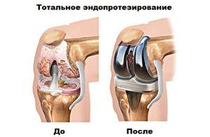 Как проводят операции