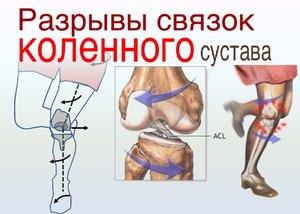 Симптомы разрывов связок коленного сустава
