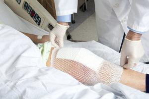 Операция при артрите